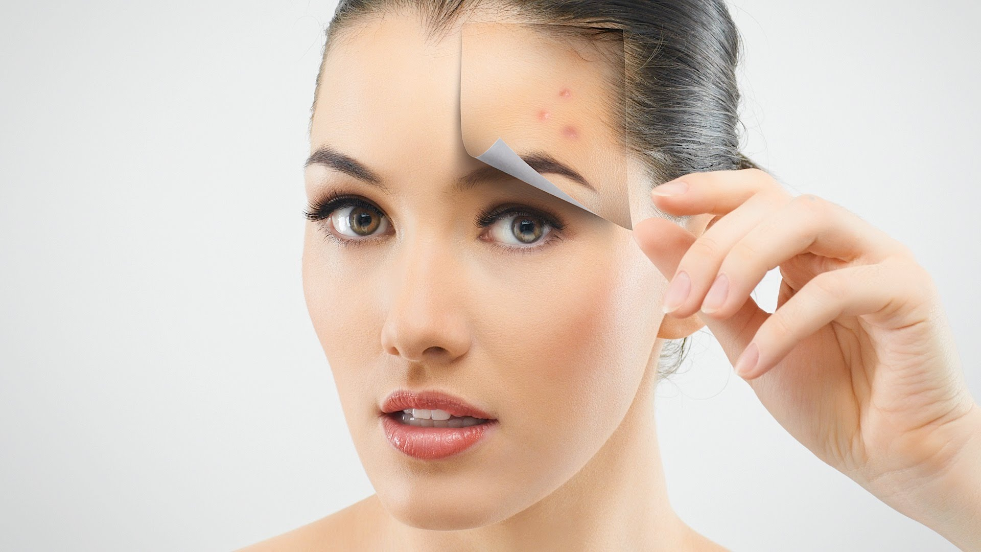 A Guide To Acne Skin Care Healthidoseshop